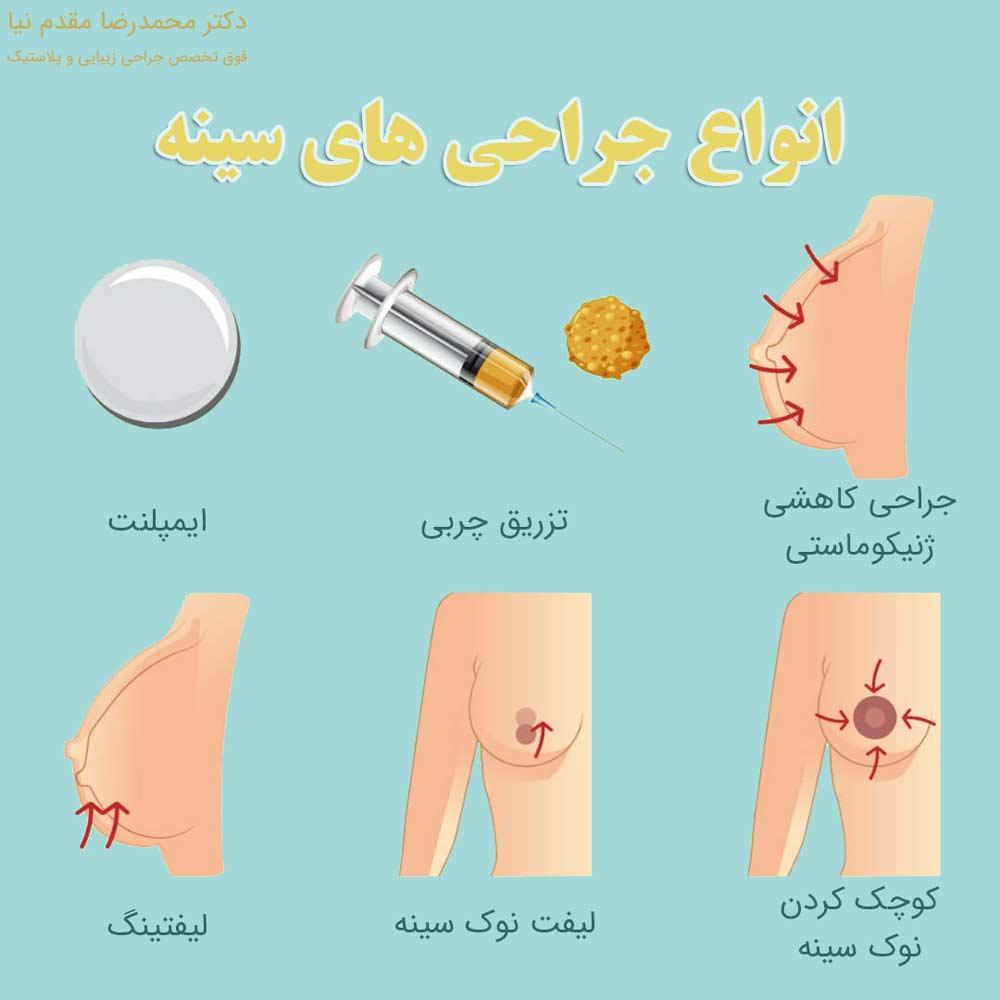 انواع جراحی های سینه