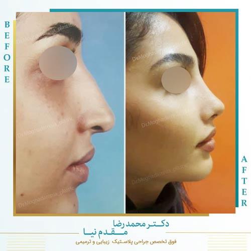 قبل و بعد جراحی بینی یکی از مراجعین خانم